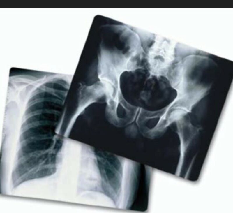Scrap Exposed X-Ray for Silver Recovery Film 3 lbs FREE SHIPPING