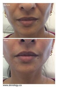 $99 for 20 Units of BOTOX OR $249 for 1 JUVEDERM Syringe