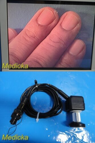Smith & Nephew DYONICS ED-3 Camera Head W/ 7204614 Focus Adjust Coupler ~ 23712