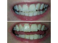 Teeth Whitening - Without needing treatment