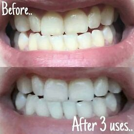 Whitening Toothpaste - The World has gone mad for