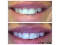 Teeth whitening detox