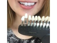 £60 teeth whitening treatment with top technician