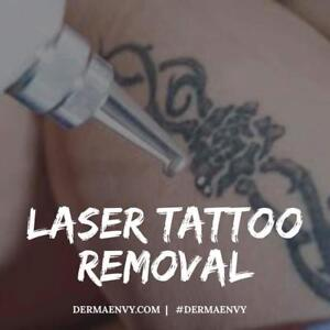 Unwanted Tattoos?  Laser Tattoo Removal Treatments in Greater Moncton  |  DermaEnvy Skincare