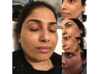 Dermaplane facial with gold collegen mask!