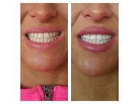 Mobile Professional Laser Teeth Whitening. Diamond 50watt Light AMAZING