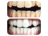 Led cosmetic teeth whitening