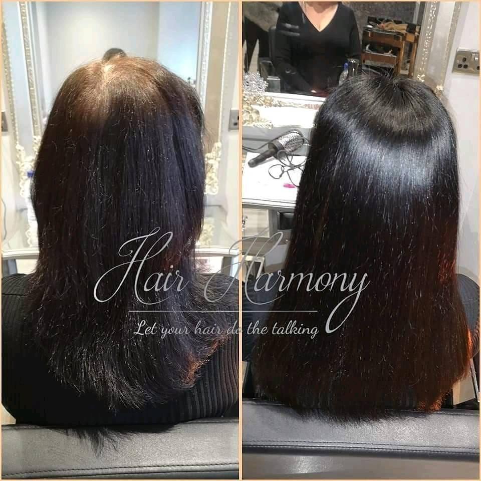 Bespoke Hair Loss System Crown Volumiser Mesh Integration