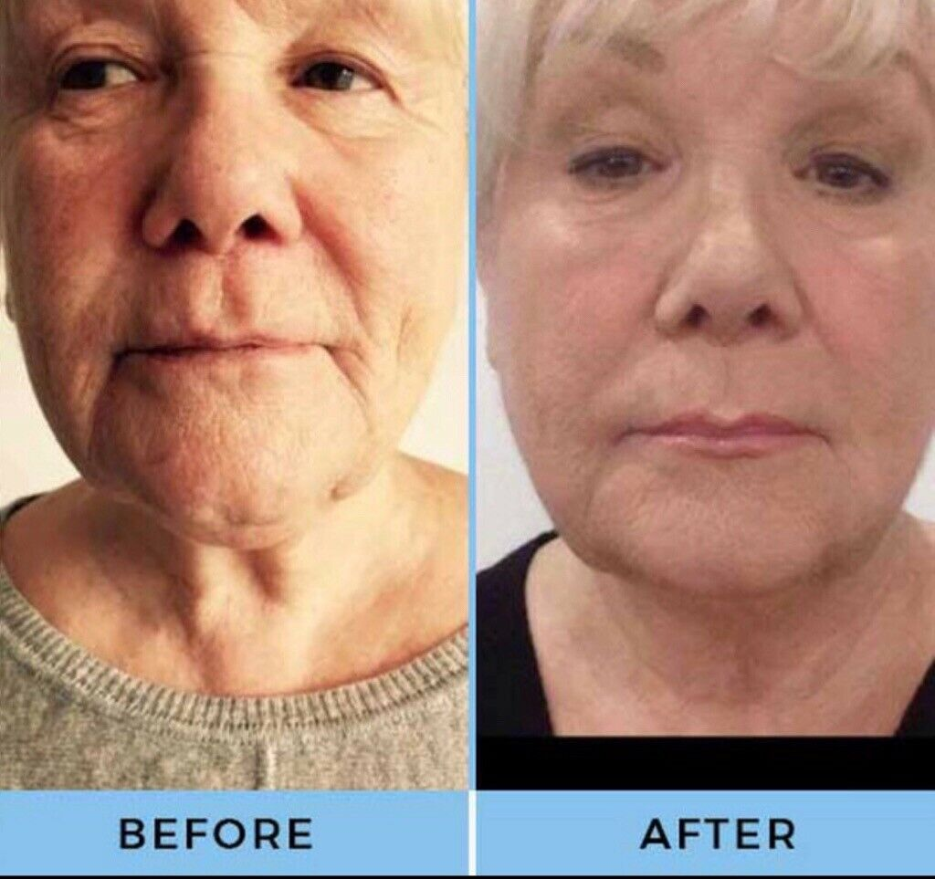 Hifu INSTANT facelift LIMITED TIME OFFER! | in Bradford