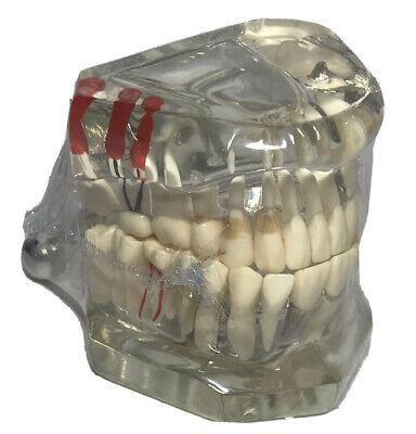 Dental Study Teach Implant Teeth Model Restoration Bridge Caries Education