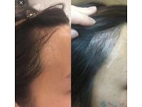 £299.99 Microblading promotion for bald/thinning hairline