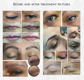 Non laser permanent make up removal