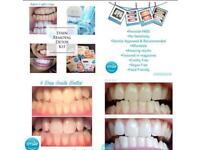 Smile Enhance Teeth Whitening Kit
