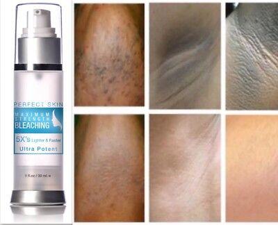 BEST Dark Skin Bleach Bleaching Cream Whitening Lightening AHA Extra Strength