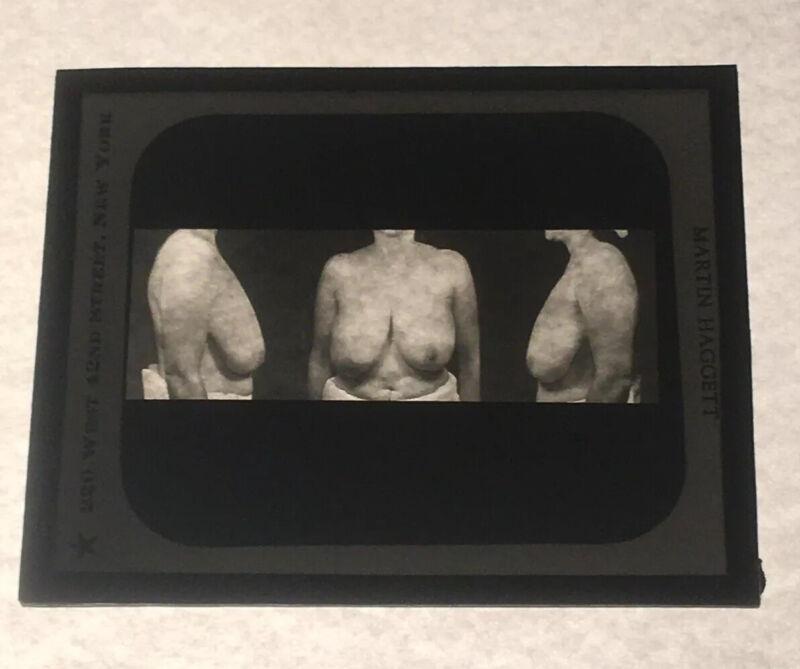 Antique Medical GLASS SLIDE PLASTIC SURGERY 1930s Martin Haggett New York City H