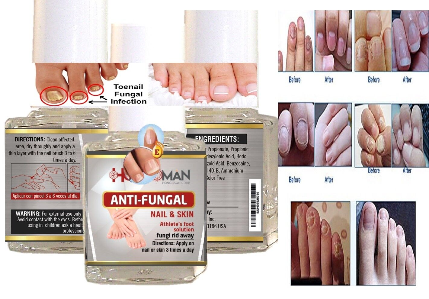 HONGO quick Best nail Fungal Killer FAST CURE BEST PRODUCT 4 CURE NAILS zana NEW