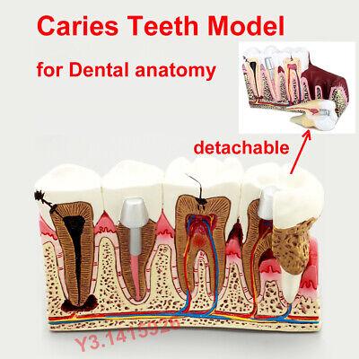 Dental Anatomy Detachable Caries Plastic Teeth Anatomical Model Demonstration