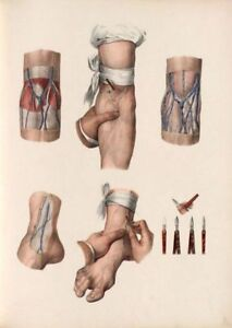 ANTIQUE-MEDICAL-BLOOD-LETTING-A3-ARS-MEDICA-RE-PRINT