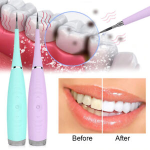 Electric Ultrasonic Sonic Dental Scaler Tooth Calculus Remover Cleaner Tooth