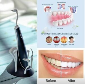 5 In 1 Ultrasonic Tooth Cleaner And Scaler