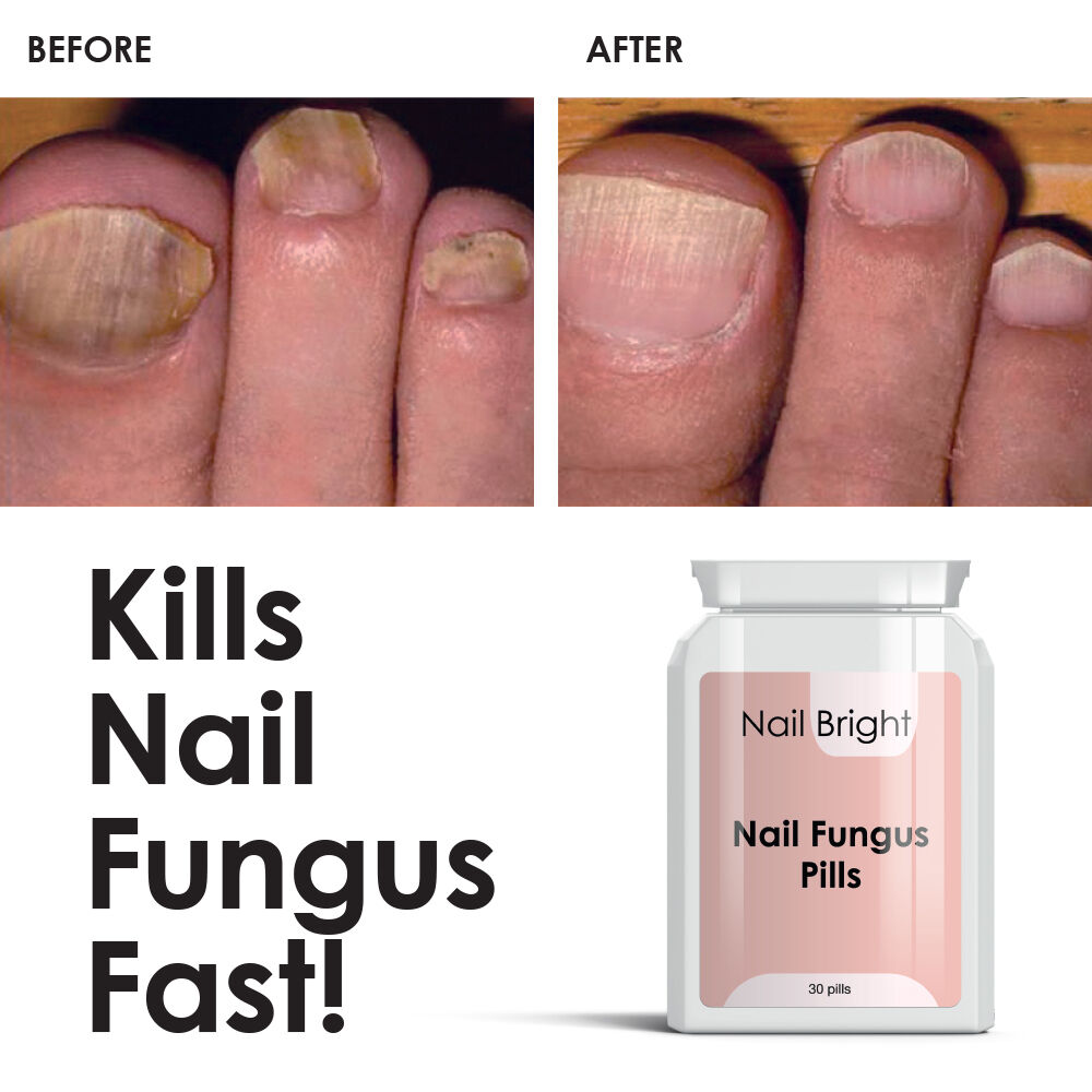 NAIL BRIGHT PILLS - Nail Fungal Cure Stop Fungus Dry Brittle ...