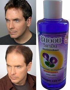BYE-BYE-HAIR-LOSS-100-Natural-Thai-Herb-GROWTH-Regrowth-Grow-Tonic-100ml