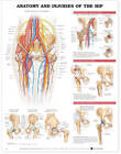 Anatomy and Injuries of the Hip Anatomical Chart by Anatomical Chart Co. (Fold-out book or chart, 2003)