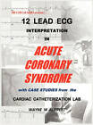 12 Lead ECG Interpretation in Acute Coronary Syndrome with Case Studies from the Cardiac Catheterization Lab by Trigen Publishing Company (Hardback, 2010)