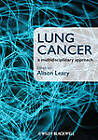 Lung Cancer: A Multidisciplinary Approach by John Wiley and Sons Ltd (Paperback, 2012)