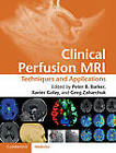 Clinical Perfusion MRI: Techniques and Applications by Cambridge University Press (Hardback, 2013)