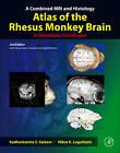 A Combined MRI and Histology Atlas of the Rhesus Monkey Brain in Stereotaxic Coordinates by Nikos K. Logothetis, Kadharbatcha S. Saleem (Hardback, 2012)