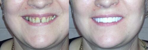 Imako Cosmetic Teeth, Snap On Smile, Veneers - FREE P&P