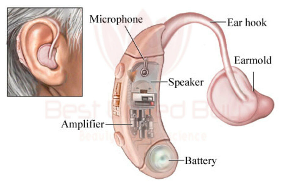 Cyber Sonic Sound Amplifier Hearing Assistance Aid Behind The Ear ...