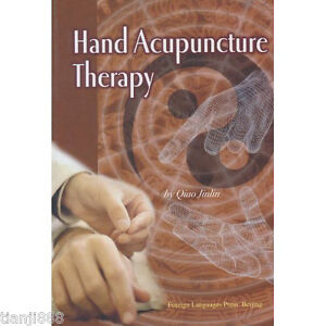 Hand-Acupuncture-Therapy