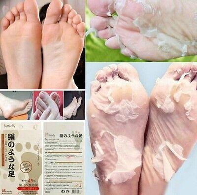 1/3/5Pair Butterfly Baby Foot Renewal Mask Remove Dead Skin Peeling Cuticle Heel