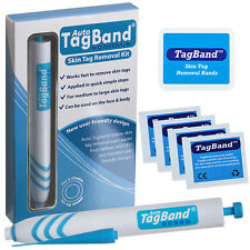 Auto TagBand Skin Tag Removal Device Kit. The Fast & Effective Skin Tag Remover!