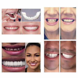 Snap-On-Instant-Smile-Perfect-Smile-Veneers-Smile-CA-Comfort-Fit-Flex-Teeth-Fits