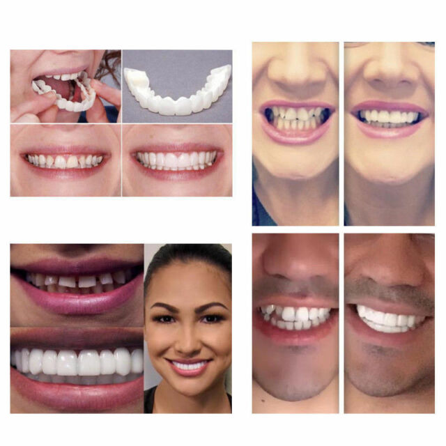 Snap On Instant Smile Perfect Smile Veneers Smile CA Comfort Fit Flex Teeth Fits