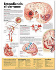 Understanding Stroke Anatomical Chart in Spanish (Entendiendo Que Es Un Derrame) by Anatomical Chart Co. (Fold-out book or chart, 2006)