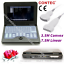 Portable-Ultrasound-Scanner-Laptop-Machine-Convex-Linear-Cardiac-Tranvaginal-USA thumbnail 30