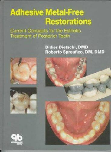 ADHESIVE METAL-FREE RESTORATIONS,ESTHETIC TREATMENT POSTERIOR TEETH,DIETSCHI