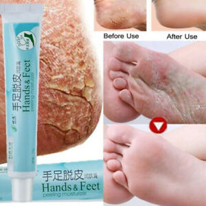 dry cracked skin on feet