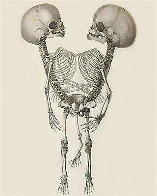 Skeleton Siamese Twins Art Print 8 x 10 - Goth Medical Oddity - Conjoined Horror