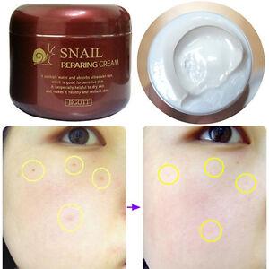 SNAIL-CREAM-Acne-amp-Blemish-Treatments-Snail-Reparing-Cream-100g-Moisturizers