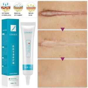20g Natural Herbal Extract Scar Cream Stretch Marks Remover Skin