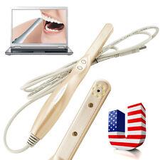 Dental Intraoral Intra Oral Camera USB 2.0 Dynamic 4 Mega Pixels 6-LED Imaging A
