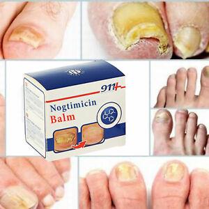 911-Cream-nogtimicin-30ML-Para-Unas-danado-Hongo-Unas