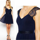 Sexy Summer Women Casual Dresses Sleeveless Cocktail Short Mini Lace Dress Style