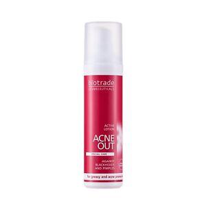 Acne-Out-Lotion-Anti-Acne-Treatment-Agains-Blackheads-Pimples-Blemish-Spots