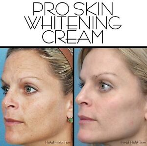 SKIN-WHITENING-CREAM-THAT-WORKS-also-treats-acne-amp-scars-Large-125ml